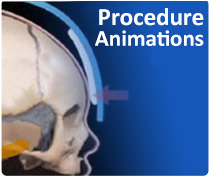 'Procedure Animations' - Craniosynostosis video animations