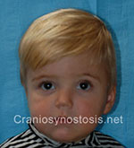 Front view after photo: coronal suture craniosynostosis case 11: Post-operation age 14 months