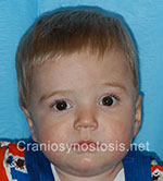 Front view after photo: coronal suture craniosynostosis case 11: Post-operation age 8 months