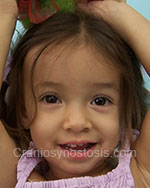 Front view after photo: coronal suture craniosynostosis case 15: Post-operation age 15 months