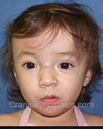Front view after photo: coronal suture craniosynostosis case 15: Post-operation age 4 months