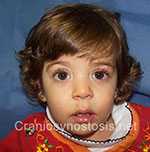 Front view after photo: coronal suture craniosynostosis case 17: Post-operation age 13 months