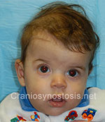 Front view before photo: coronal suture craniosynostosis case 17: Pre-operation age 5 week