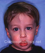 Front view after photo: coronal suture craniosynostosis case 18: Post-operation age 22 months