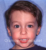 Front view after photo: coronal suture craniosynostosis case 18: Post-operation age 2 years