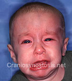 Front view after photo: coronal suture craniosynostosis case 18: Post-operation age 3 months