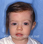 Front view after photo: coronal suture craniosynostosis case 21: Post-operation age 10 months