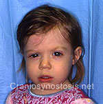 Front view after photo: coronal suture craniosynostosis case 21: Post-operation age 13 months