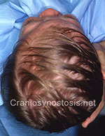 Top view after photo: coronal suture craniosynostosis case 21: Post-operation age 13 months