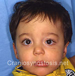 Front view after photo: coronal suture craniosynostosis case 23: Post-operation age 10 months