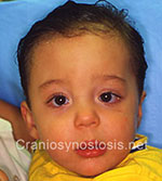 Front view after photo: coronal suture craniosynostosis case 23: Post-operation age 11 months