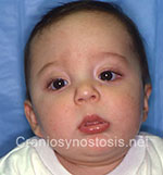 Front view after photo: coronal suture craniosynostosis case 23: Post-operation age 2 months