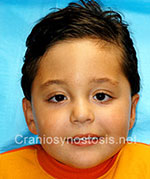 Front view after photo: coronal suture craniosynostosis case 23: Post-operation age 2 year