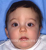 Front view after photo: coronal suture craniosynostosis case 23: Post-operation age 4 months