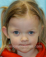 Front view after photo: coronal suture craniosynostosis case 24: Post-operation age 3 years