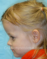 side view after photo: coronal suture craniosynostosis case 24: Post-operation age 3 years