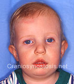 Front view after photo: coronal suture craniosynostosis case 25: Post-operation age 10 months
