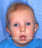 Front view after photo: coronal suture craniosynostosis case 25: Post-operation age 4 months
