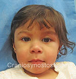 Front view after photo: coronal suture craniosynostosis case 28: Post-operation age 3.5 weeks