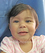 Front view after photo: coronal suture craniosynostosis case 28: Post-operation age 7 weeks