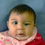 Front view before photo: coronal suture craniosynostosis case 28: Pre-operation age 4 weeks