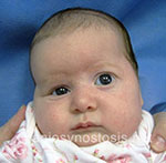 Front view before photo: coronal suture craniosynostosis case 3: Pre-operation age 3 weeks