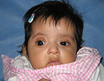 Front view before photo: coronal suture craniosynostosis case 4: Pre-operation age 2 weeks
