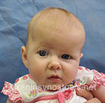 Front view before photo: coronal suture craniosynostosis case 5: Pre-operation age 2 weeks