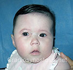 Front view before photo: coronal suture craniosynostosis case 6: Pre-operation age 2 weeks