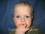 Front view after photo: coronal suture craniosynostosis case 7: Post-operation age 9 months