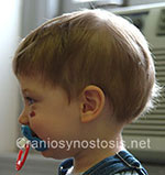 Side view after photo: metopic suture craniosynostosis case 1: Post-operation age 2 years