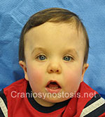 Front view after photo: metopic suture craniosynostosis case 10: Post-operation age 14 Months