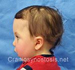 Side view before photo: metopic suture craniosynostosis case 10: Pre-operation age 14 Months