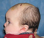 Side view before photo: metopic suture craniosynostosis case 10: Pre-operation age 6 weeks