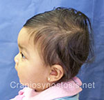 Side view before photo: metopic suture craniosynostosis case 11: Pre-operation age 6 weeks