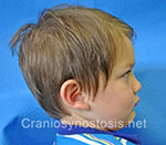 Side view after photo: metopic suture craniosynostosis case 12: Post-operation age 2.5 years