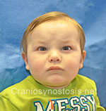 Front view after photo: metopic suture craniosynostosis case 12: Post-operation age 8 months