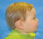 Side view after photo: metopic suture craniosynostosis case 12: Post-operation age 8 months