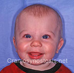Front view after photo: metopic suture craniosynostosis case 13: Post-operation age 7 Months