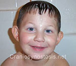 Front view after photo: metopic suture craniosynostosis case 14: Post-operation age 3 years