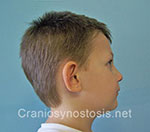 Side view after photo: metopic suture craniosynostosis case 14: Post-operation age 4 years