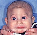 Front view before photo: metopic suture craniosynostosis case 14: Pre-operation age 3 weeks
