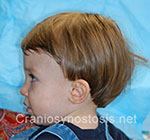 Side view after photo: metopic suture craniosynostosis case 16: Post-operation age 2 years