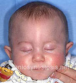 Front view before photo: metopic suture craniosynostosis case 16: Pre-operation age 4 weeks