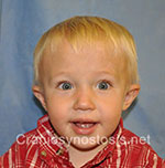 Front view after photo: metopic suture craniosynostosis case 2: Post-operation age 1.5 years