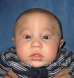 Front view before photo: metopic suture craniosynostosis case 2: Pre-operation age 3 weeks