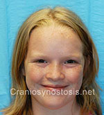 Front view after photo: metopic suture craniosynostosis case 3: Post-operation age 9 years