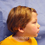 Side view before photo: metopic suture craniosynostosis case 30: Pre-operation age 1 Year