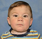 Front view after photo: metopic suture craniosynostosis case 30: Post-operation age 4 Month