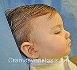 Side view before photo: metopic suture craniosynostosis case 30: Pre-operation age 7 weeks